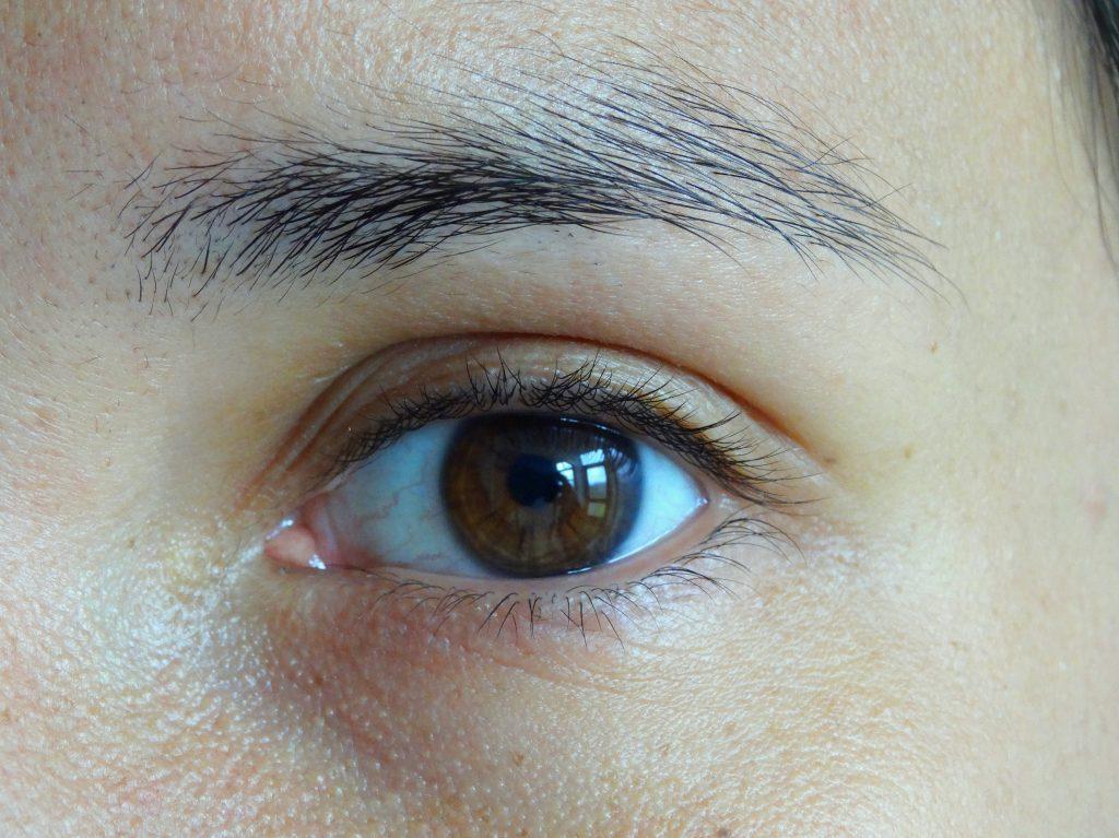 Gladskin, Eczeem behandeling, Gladskin eczema creme, eczeem oog na behandeling gladskin