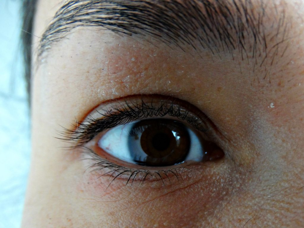 salcura bioskin eczeem oog