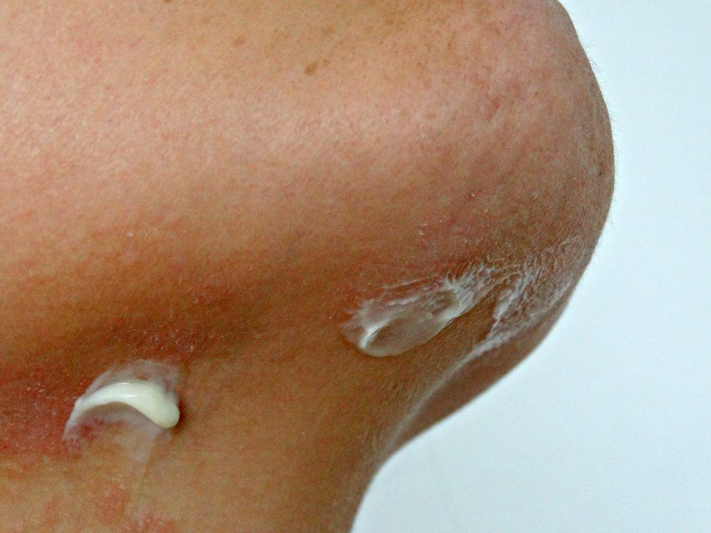 salcura bioskin zeoderm gezichts en lichaamscreme