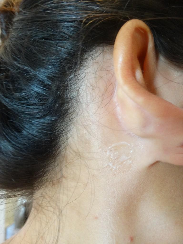 L'Oreal-haarverf-allergietest