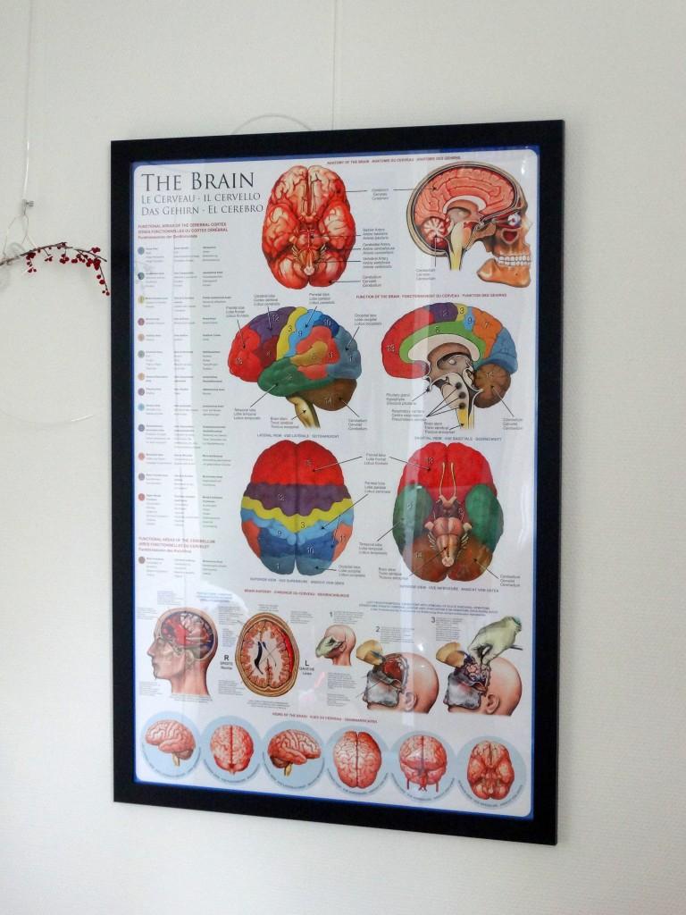 Posters review hersenen wissellijst
