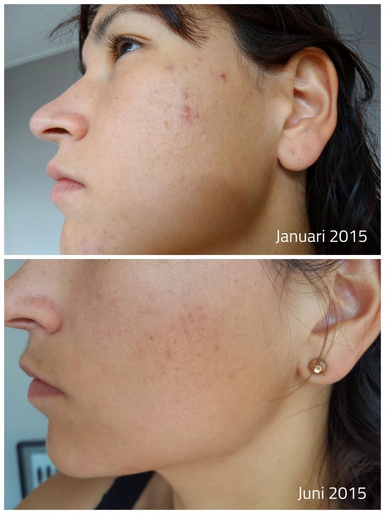 onzuivere huid behandelen met dermalogica, voor en na