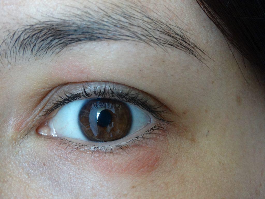 Gladskin, Eczeem behandeling, Gladskin eczema creme, eczeem rondom oog behandelen gladskin