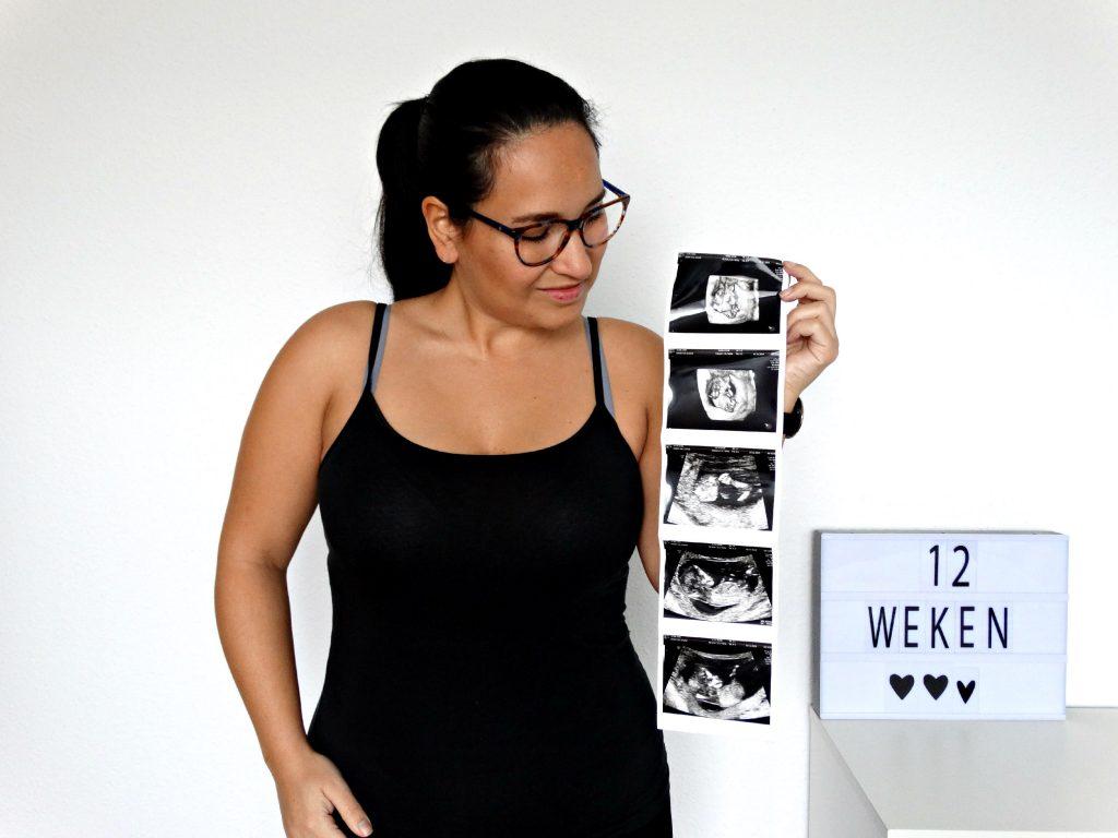 12 weken echo zwanger zijn met een beperking